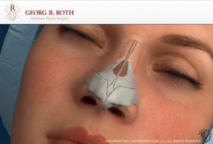 Die Nasenkorrektur Beratung vom Spezialist Dr. Roth